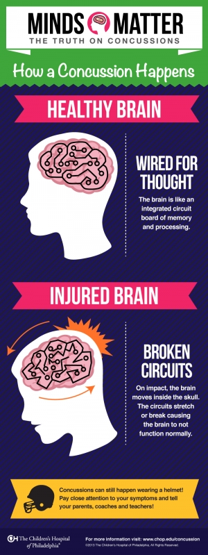 How a Concussion Happens Infographic