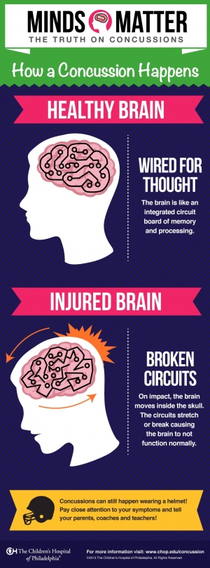 image of concussion injury infographic
